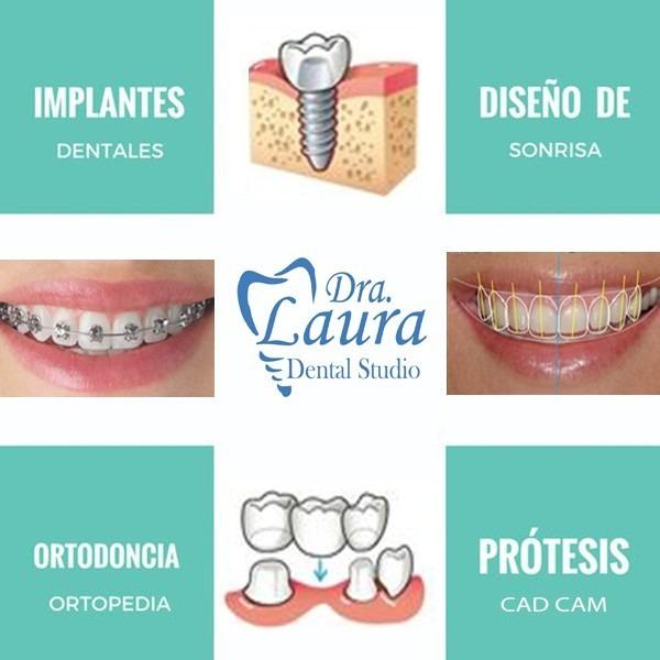 Implantes dentales campaña social!!